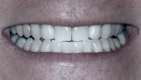 results of invisalign