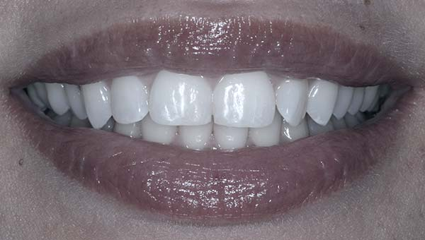results of tooth contouring