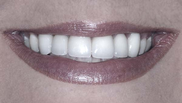 results of porcelain crowns