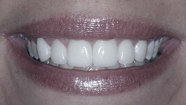 results of cosmetic gum sculpting