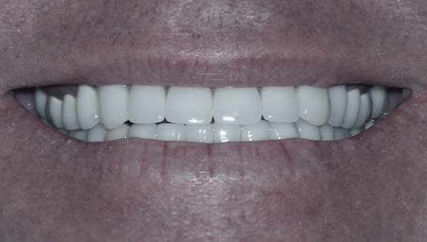 results of dental implants
